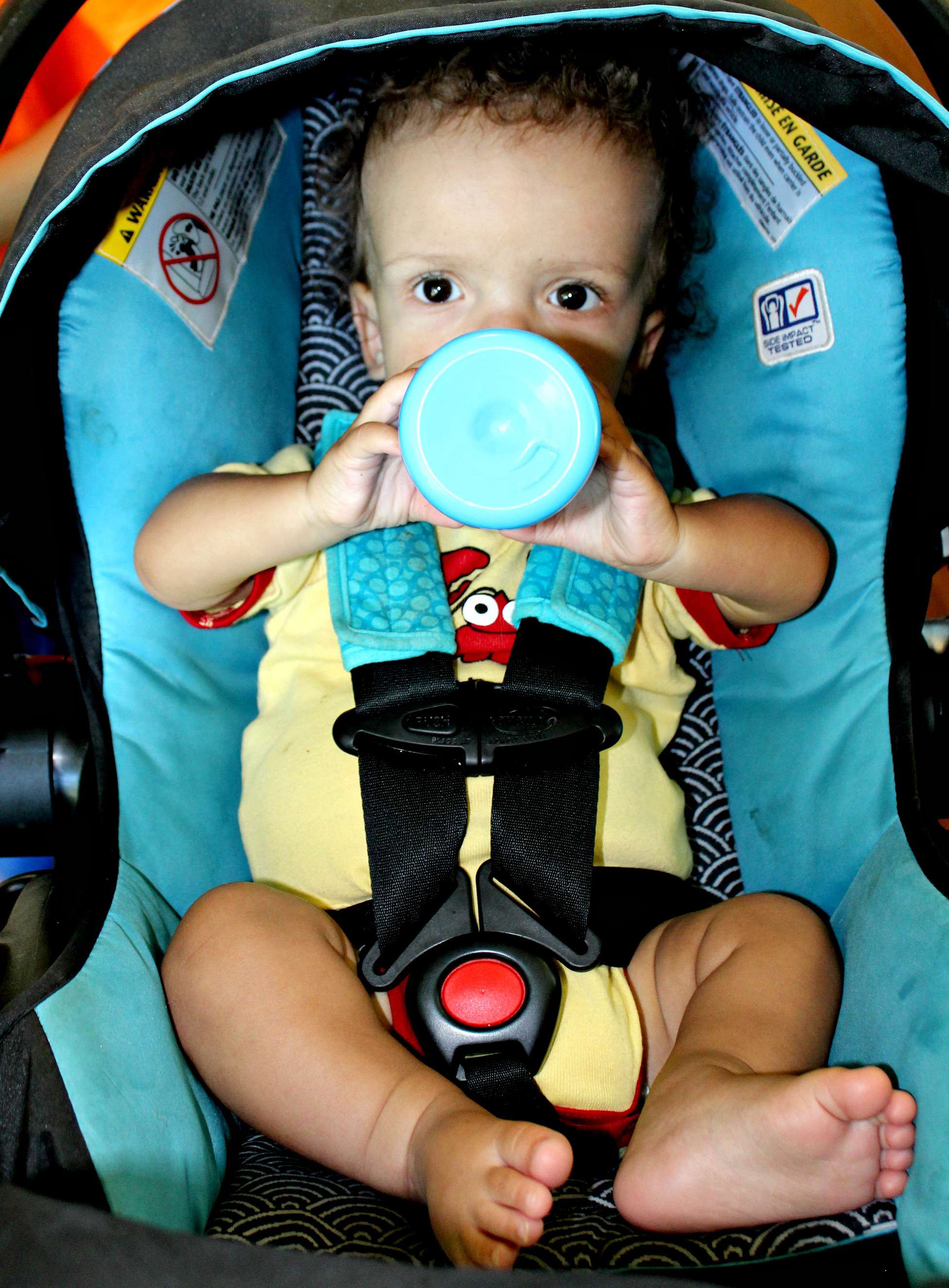 Achondroplasia 15-Month Check-Up