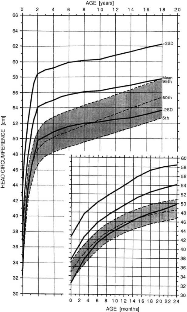 Head Circumference Growth Chart in Achondroplasia Growth (Female)