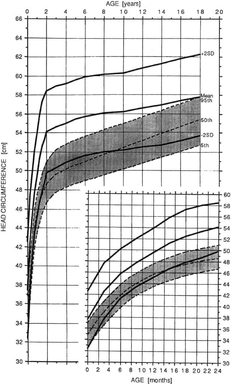Achondroplasia Growth And Motor Milestones Charts