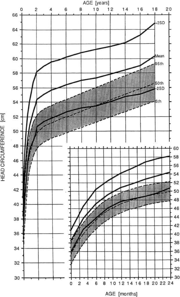 Head Circumference Growth Chart in Achondroplasia Growth (Male)