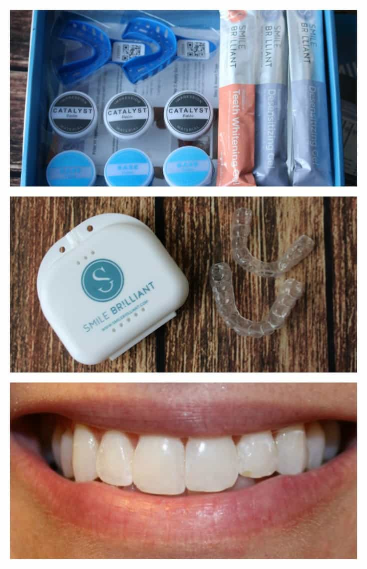 As a dental hygienist I was hesitant to try Smile Brilliant but was happy with what I found out! Smile Brilliant is an at home teeth whitening service that uses professional materials and whitening products to achieve amazing results for less cost! See the before and after photos on my blog review!